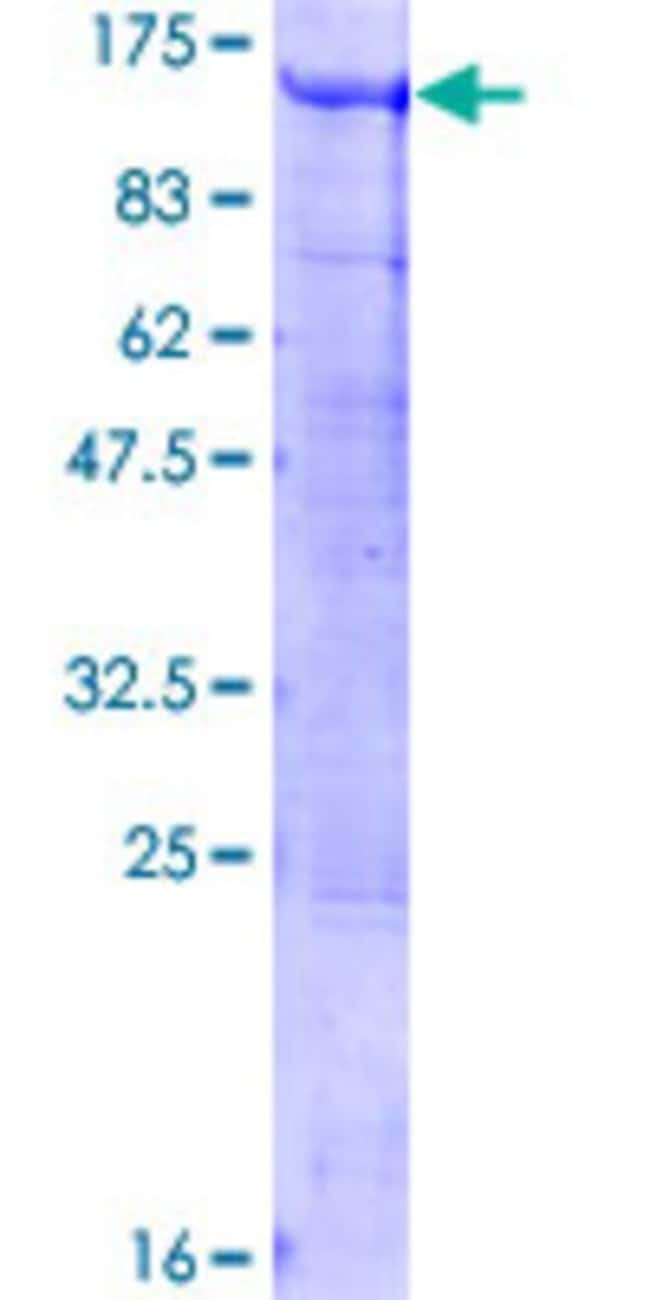 Abnova™Human BCAS3 Full-length ORF (NP_060149.2, 1 a.a. - 913 a.a.) Recombinant Protein with GST-tag at N-terminal 25μg Abnova™Human BCAS3 Full-length ORF (NP_060149.2, 1 a.a. - 913 a.a.) Recombinant Protein with GST-tag at N-terminal