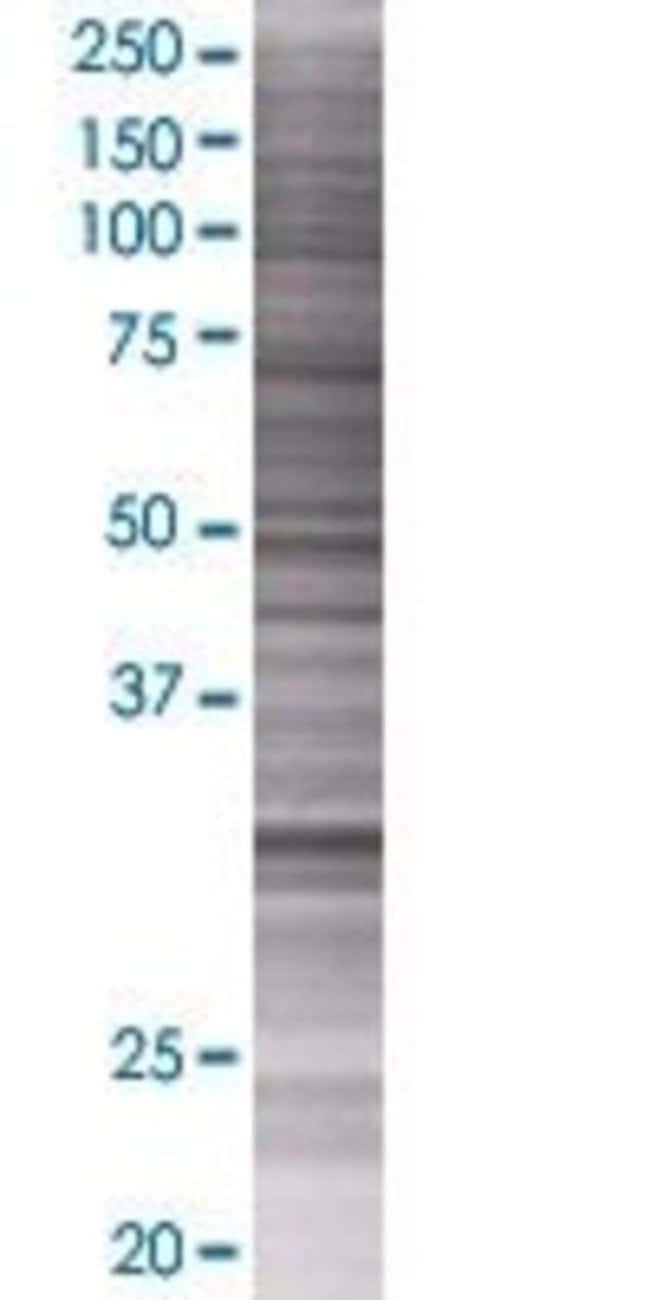 AbnovaAPTX 293T Cell Transient Overexpression Lysate (Denatured) 100μL:Protein