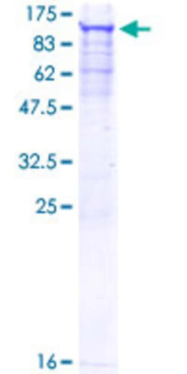 Abnova™Human SNRK Full-length ORF (AAH71567.1, 1 a.a. - 765 a.a.) Recombinant Protein with GST-tag at N-terminal 25μg Abnova™Human SNRK Full-length ORF (AAH71567.1, 1 a.a. - 765 a.a.) Recombinant Protein with GST-tag at N-terminal