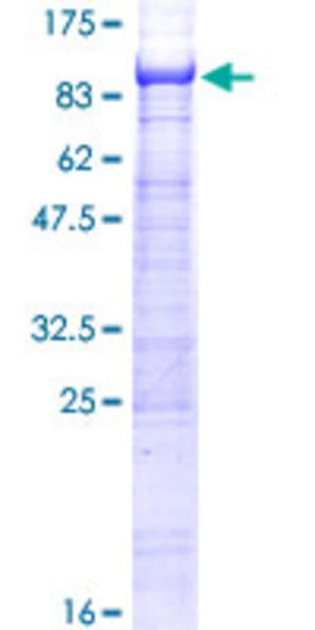 AbnovaHuman ST7L Full-length ORF (NP_060214.2, 1 a.a. - 575 a.a.) Recombinant