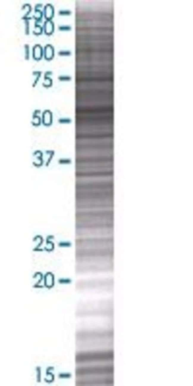 AbnovaALKBH5 293T Cell Transient Overexpression Lysate (Denatured) (T01)