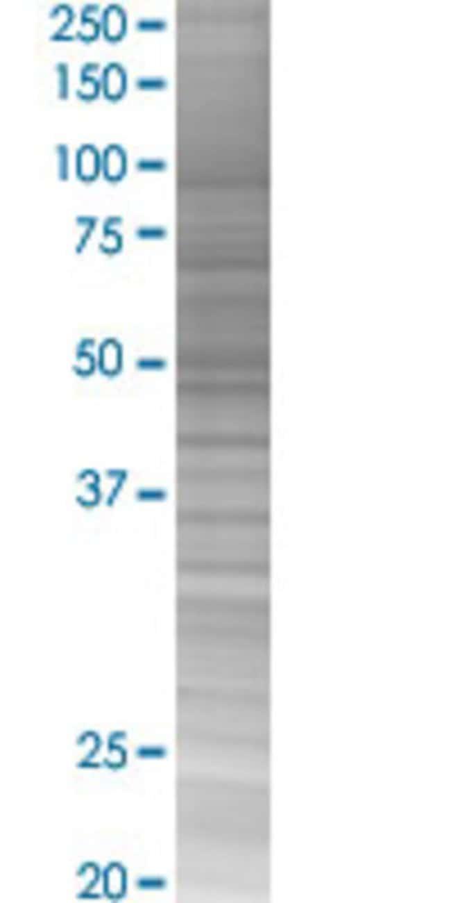 AbnovaALKBH5 293T Cell Transient Overexpression Lysate (Denatured) (T02)