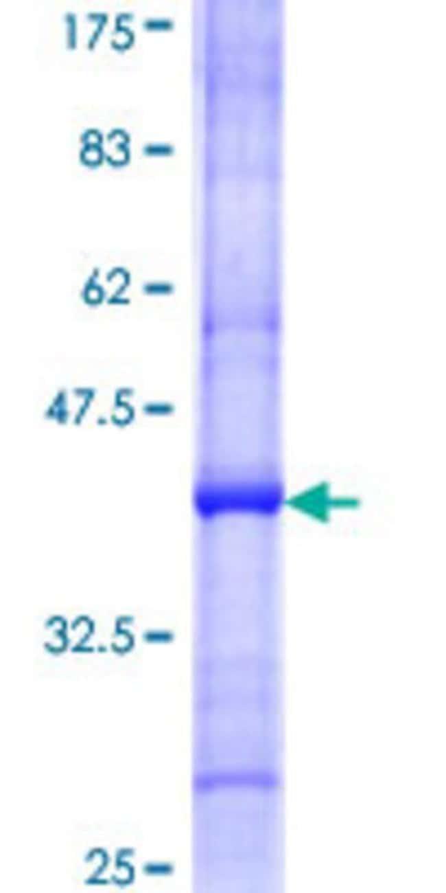 AbnovaHuman LUZP5 Partial ORF (NP_060230, 177 a.a. - 274 a.a.) Recombinant