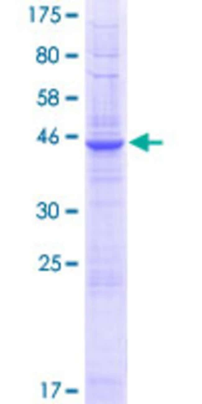 AbnovaHuman PQLC2 Full-length ORF (NP_001035215.1, 1 a.a. - 226 a.a.) Recombinant