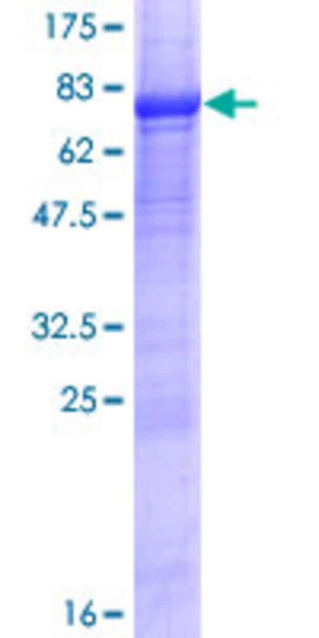 Abnova™ Human LAX1 Full-length ORF (NP_060243.2, 1 a.a. - 398 a.a.) Recombinant Protein with GST-tag at N-terminal 10μg Abnova™ Human LAX1 Full-length ORF (NP_060243.2, 1 a.a. - 398 a.a.) Recombinant Protein with GST-tag at N-terminal
