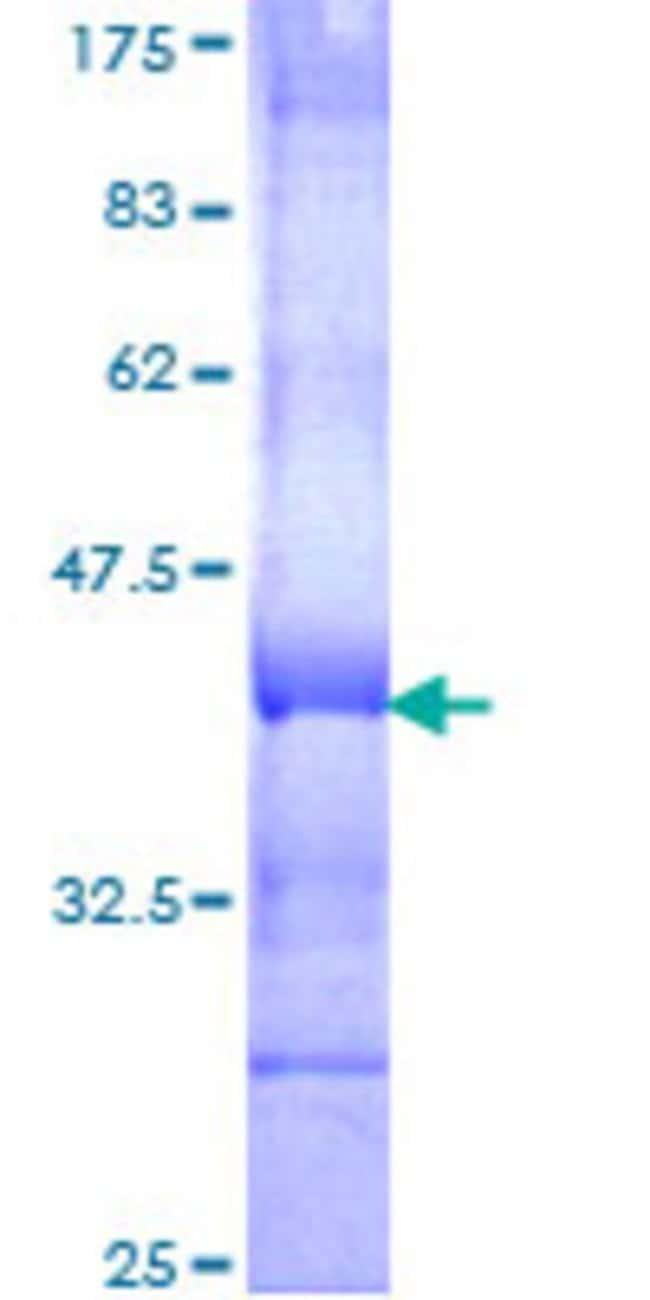 Abnova™Human SEMA4C Partial ORF (NP_060259, 536 a.a. - 635 a.a.) Recombinant Protein with GST-tag at N-terminal 25μg Abnova™Human SEMA4C Partial ORF (NP_060259, 536 a.a. - 635 a.a.) Recombinant Protein with GST-tag at N-terminal