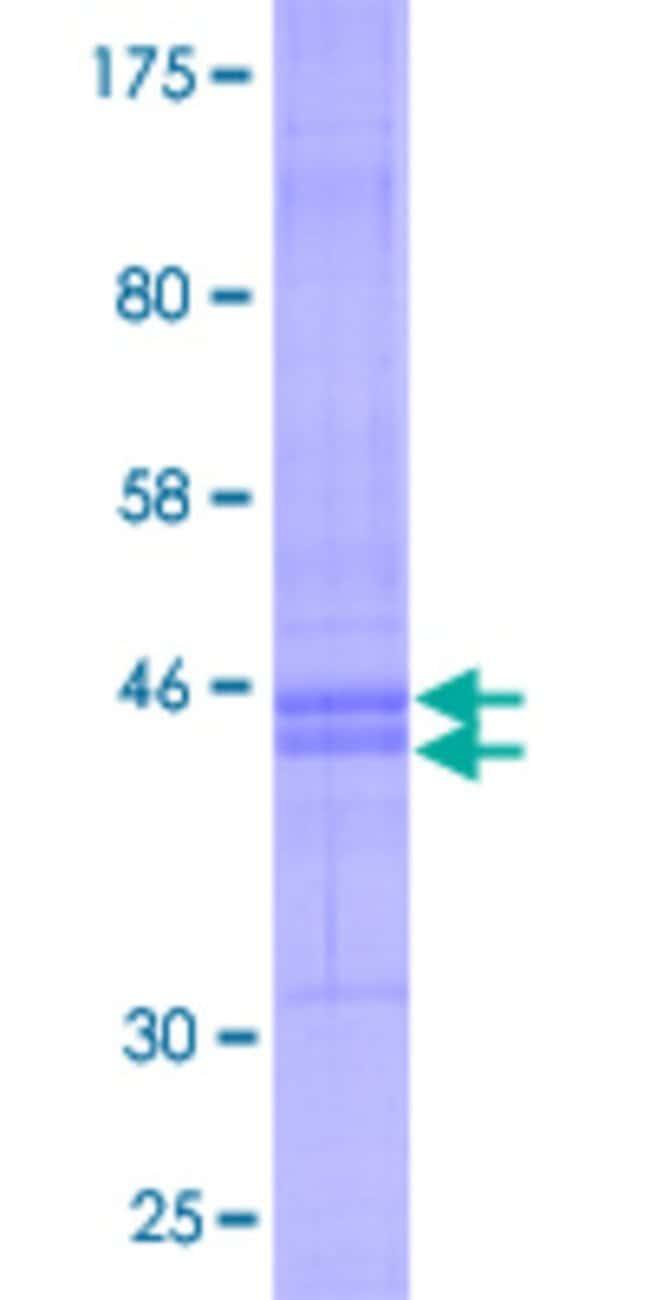 AbnovaHuman CMTM6 Full-length ORF (NP_060271.1, 1 a.a. - 183 a.a.) Recombinant