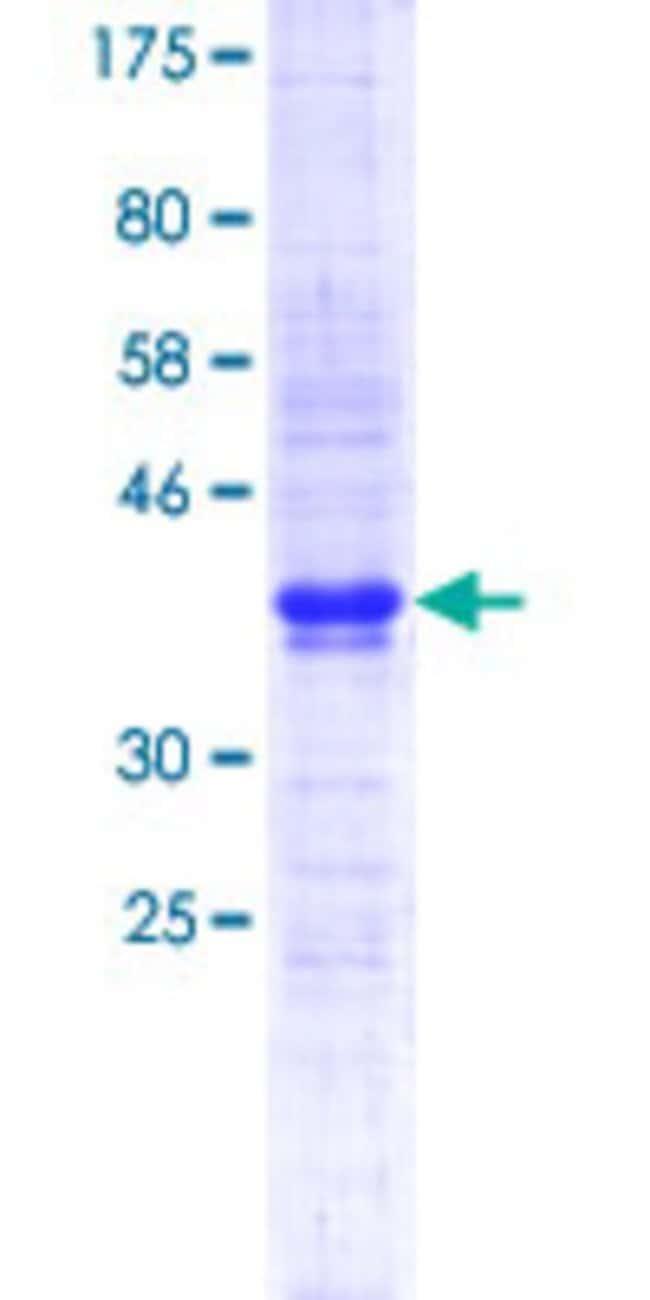 AbnovaHuman CMTM6 Partial ORF (NP_060271.1, 1 a.a. - 85 a.a.) Recombinant