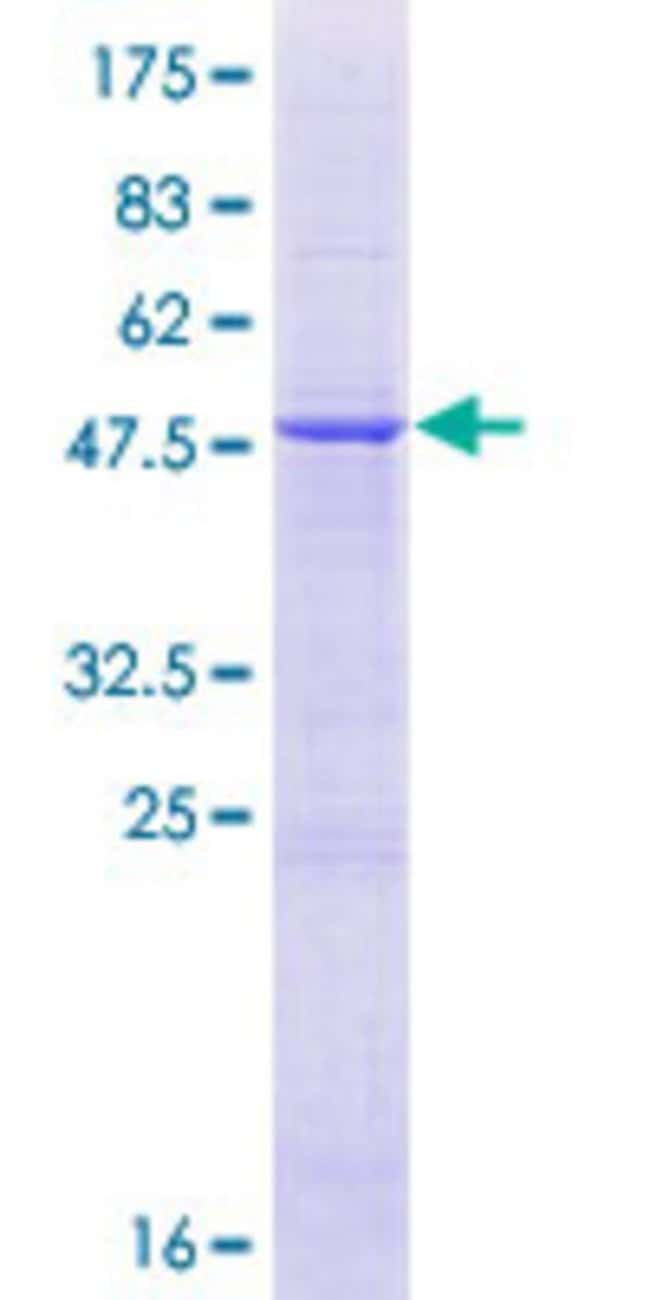 Abnova™Human HEATR2 Full-length ORF (AAH10850.1, 1 a.a. - 223 a.a.) Recombinant Protein with GST-tag at N-terminal 25μg Abnova™Human HEATR2 Full-length ORF (AAH10850.1, 1 a.a. - 223 a.a.) Recombinant Protein with GST-tag at N-terminal
