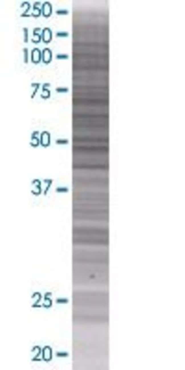 Abnova HEATR2 293T Cell Transient Overexpression Lysate (Denatured) (T01)