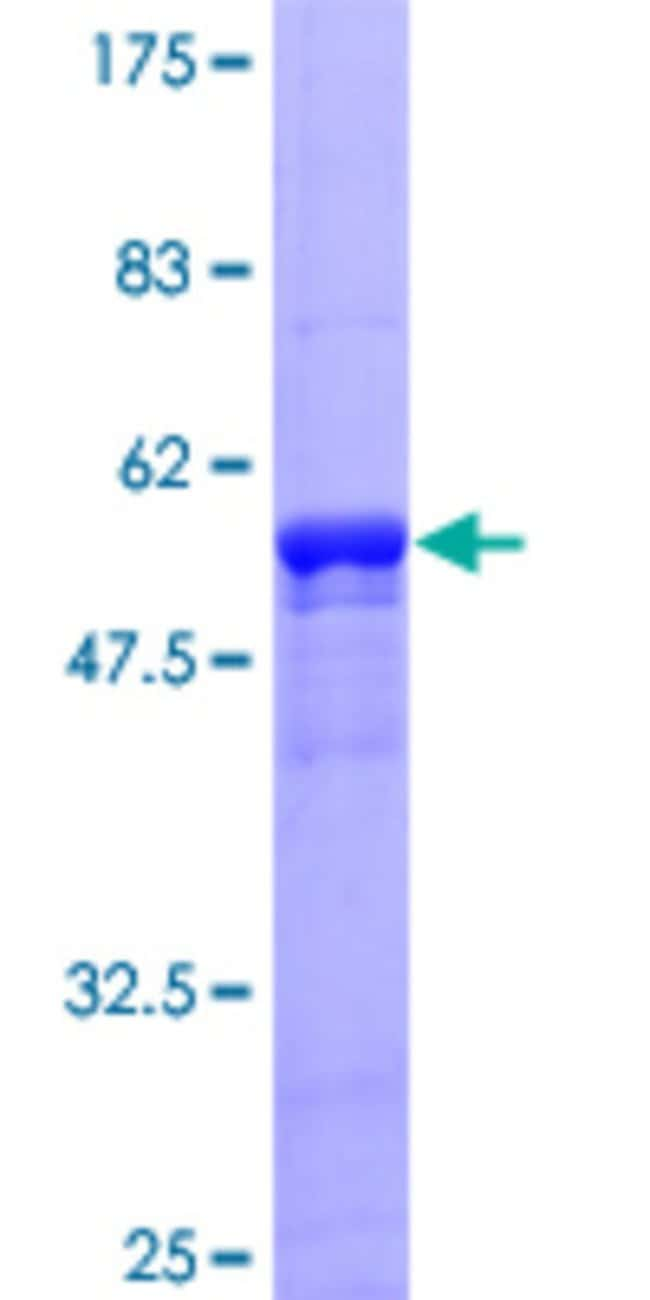 Abnova™ Human ZNF434 Full-length ORF (AAH02859, 1 a.a. - 256 a.a.) Recombinant Protein with GST-tag at N-terminal 10μg Abnova™ Human ZNF434 Full-length ORF (AAH02859, 1 a.a. - 256 a.a.) Recombinant Protein with GST-tag at N-terminal