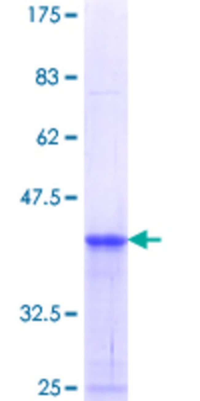 AbnovaHuman RHBDL2 Partial ORF (NP_060291.2, 1 a.a. - 72 a.a.) Recombinant