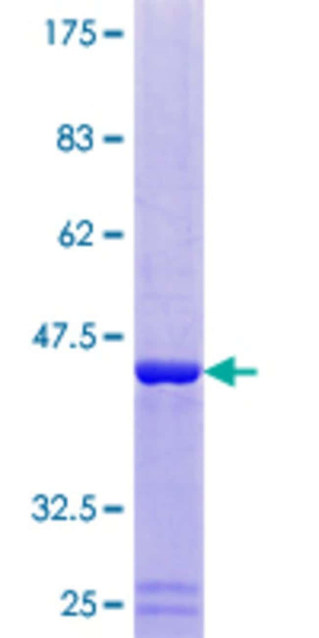 Abnova™Human DUSP23 Full-length ORF (NP_060293.2, 1 a.a. - 150 a.a.) Recombinant Protein with GST-tag at N-terminal 25μg Abnova™Human DUSP23 Full-length ORF (NP_060293.2, 1 a.a. - 150 a.a.) Recombinant Protein with GST-tag at N-terminal