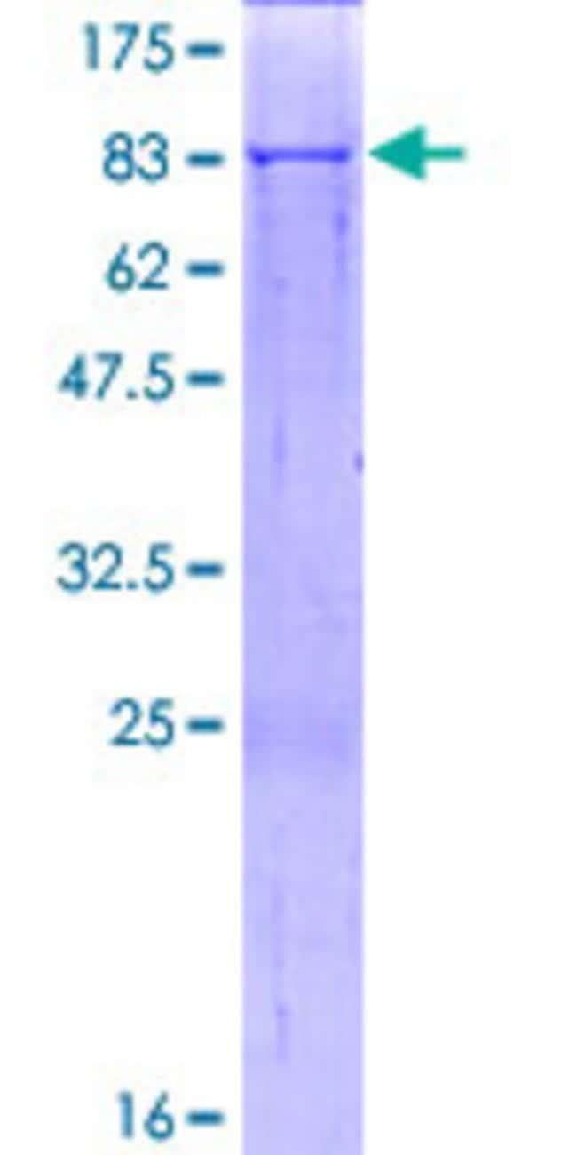 AbnovaHuman SARS2 Full-length ORF (NP_060297.1, 1 a.a. - 518 a.a.) Recombinant
