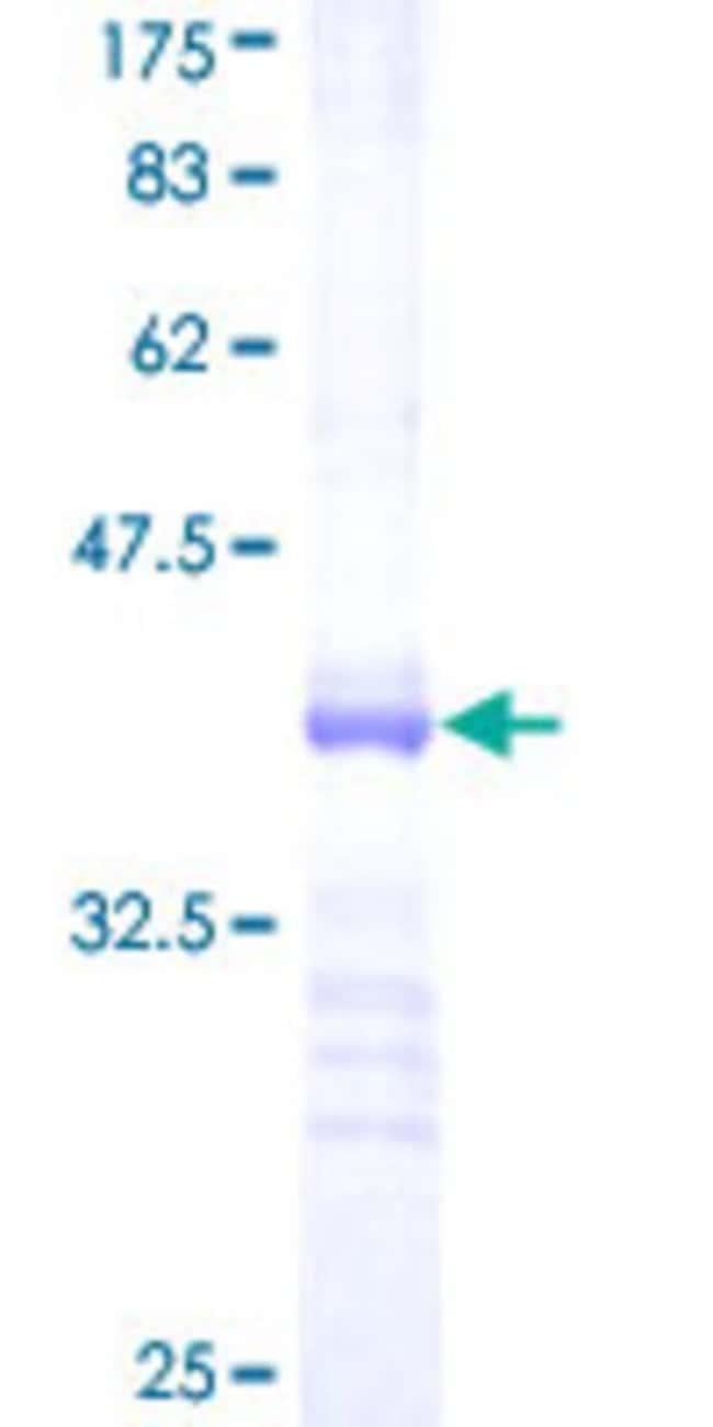 AbnovaHuman RNF125 Partial ORF (NP_060301, 143 a.a. - 231 a.a.) Recombinant