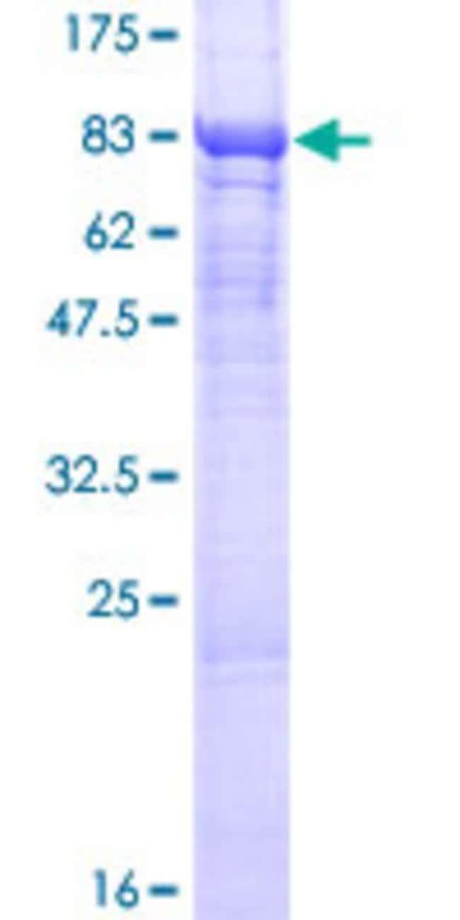 AbnovaHuman LPCAT2 Full-length ORF (NP_060309.2, 1 a.a. - 544 a.a.) Recombinant