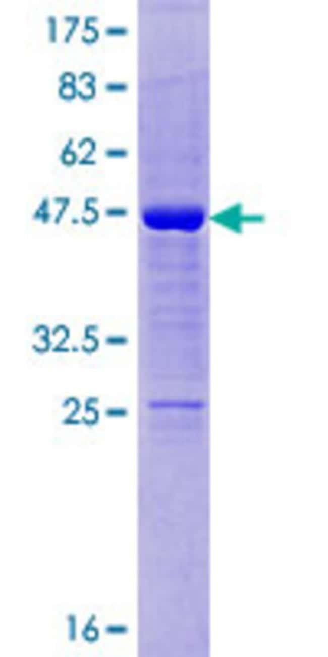AbnovaHuman ODAM Full-length ORF (AAH17796.1, 1 a.a. - 153 a.a.) Recombinant