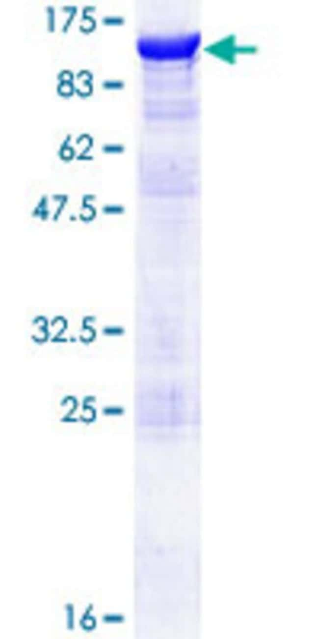 Abnova™ Human SSH3 Full-length ORF (AAH07709.1, 1 a.a. - 659 a.a.) Recombinant Protein with GST-tag at N-terminal 10μg Abnova™ Human SSH3 Full-length ORF (AAH07709.1, 1 a.a. - 659 a.a.) Recombinant Protein with GST-tag at N-terminal