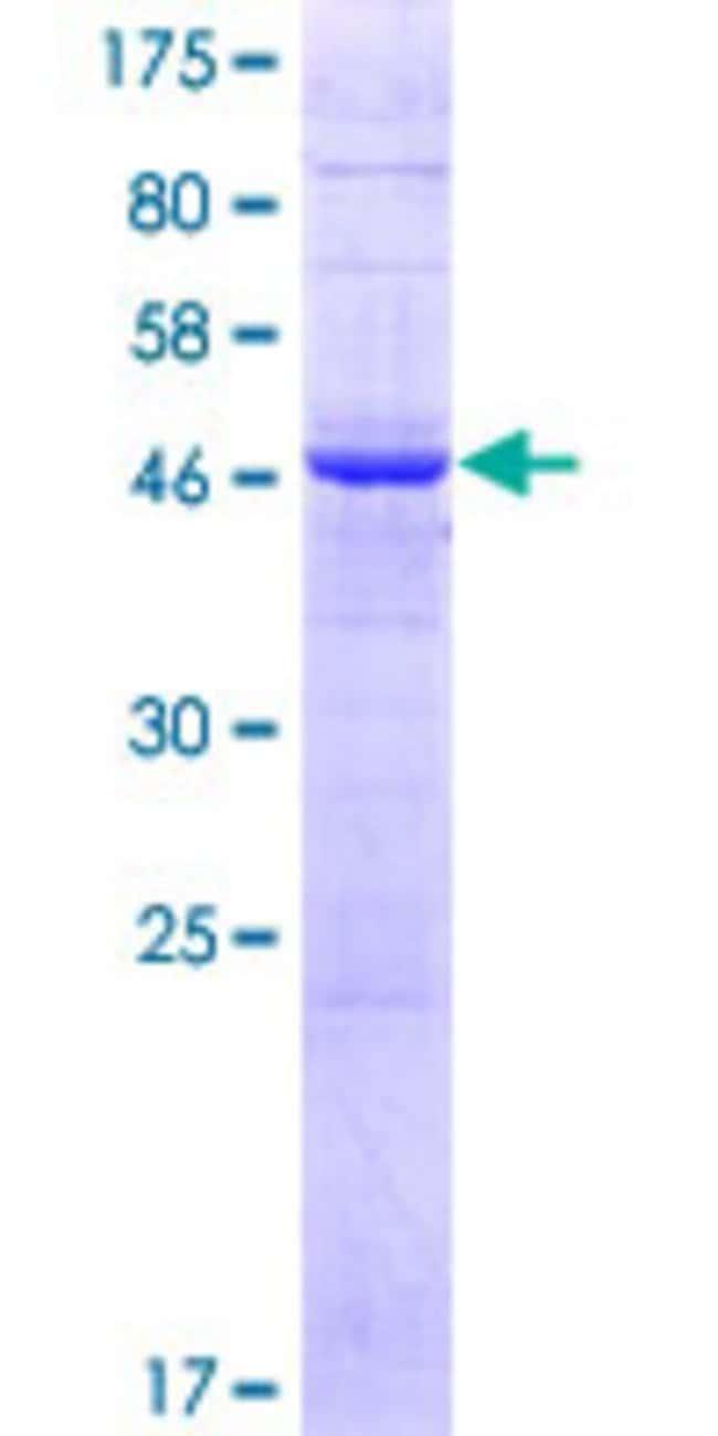 AbnovaHuman PIGX Full-length ORF (NP_060331.1, 1 a.a. - 217 a.a.) Recombinant