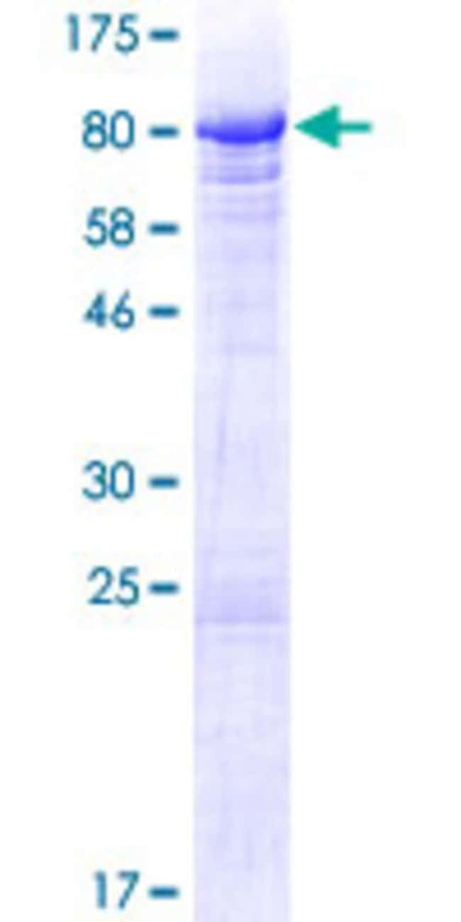 AbnovaHuman BANP Full-length ORF (NP_060339.2, 1 a.a. - 469 a.a.) Recombinant