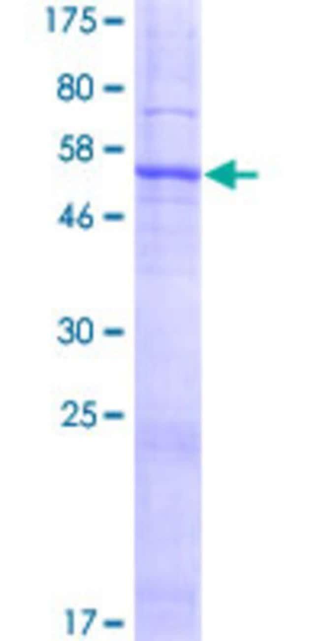 AbnovaHuman SLC25A38 Full-length ORF (AAH13194.1, 1 a.a. - 304 a.a.) Recombinant