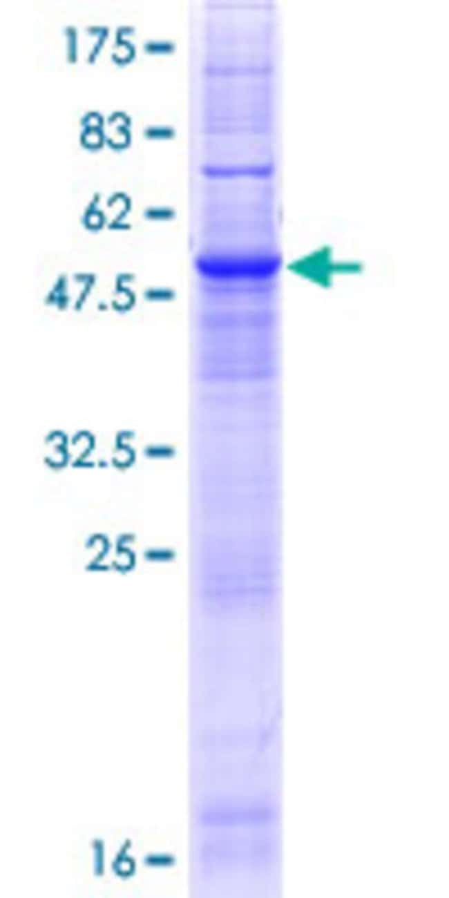 Abnova™Human CLN6 Full-length ORF (NP_060352.1, 1 a.a. - 311 a.a.) Recombinant Protein with GST-tag at N-terminal 25μg Abnova™Human CLN6 Full-length ORF (NP_060352.1, 1 a.a. - 311 a.a.) Recombinant Protein with GST-tag at N-terminal