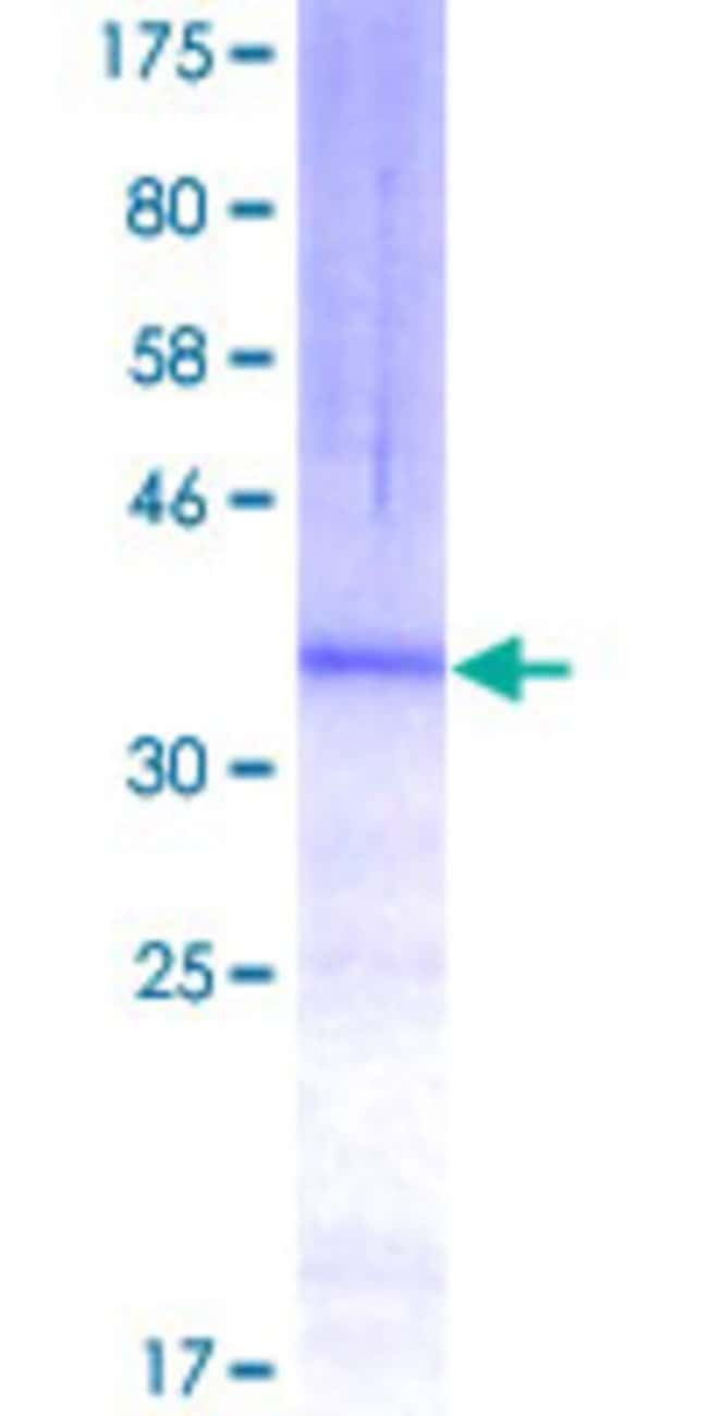 Abnova™Human MARCH1 Partial ORF (NP_060393, 1 a.a. - 99 a.a.) Recombinant Protein with GST-tag at N-terminal 25μg Abnova™Human MARCH1 Partial ORF (NP_060393, 1 a.a. - 99 a.a.) Recombinant Protein with GST-tag at N-terminal