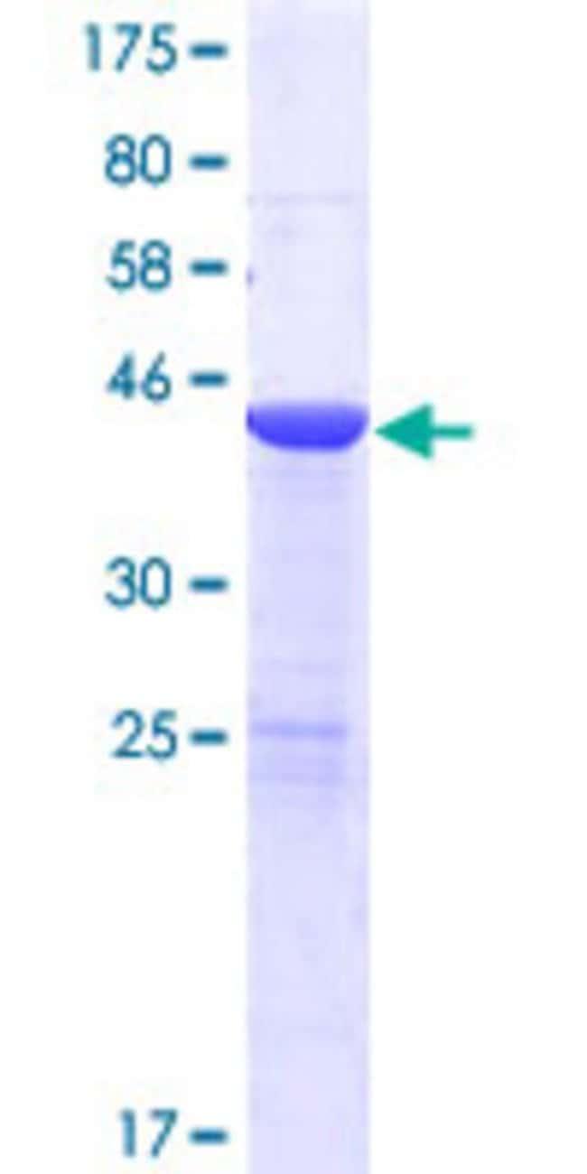 AbnovaHuman USP47 Full-length ORF (AAH00226.2, 1 a.a. - 157 a.a.) Recombinant