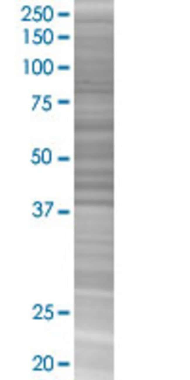 AbnovaATG16L1 293T Cell Transient Overexpression Lysate (Denatured) (T02)
