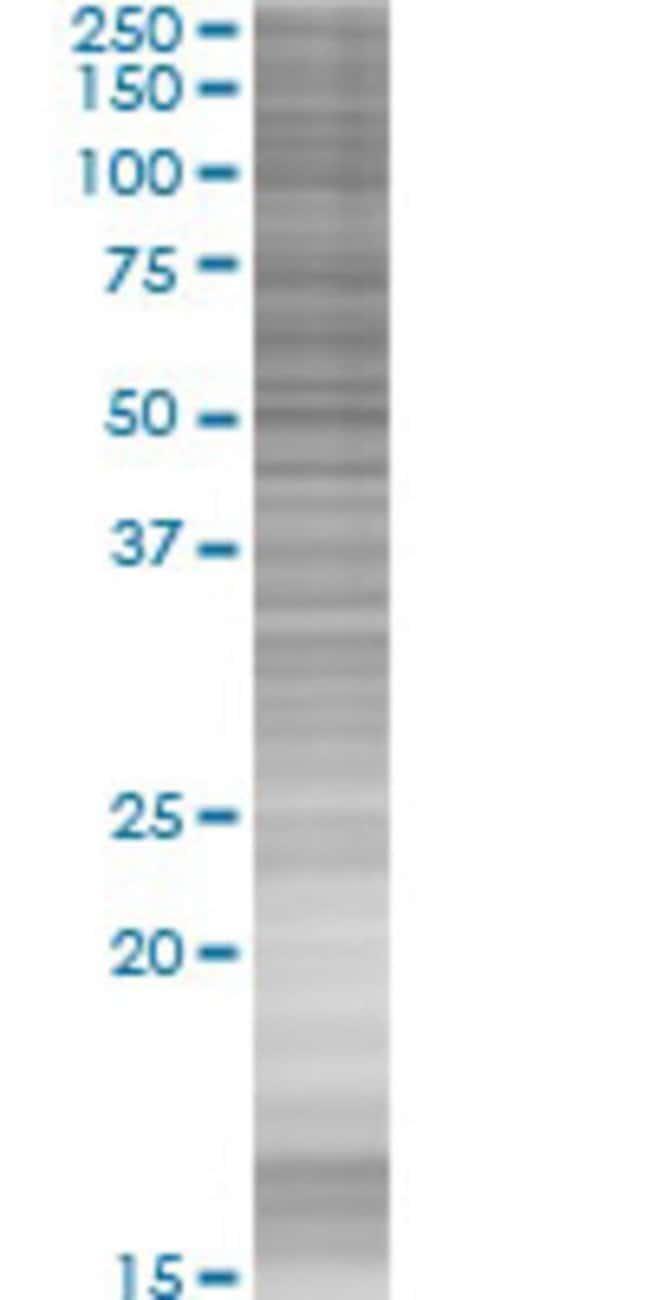 AbnovaATG16L1 293T Cell Transient Overexpression Lysate (Denatured) (T03)