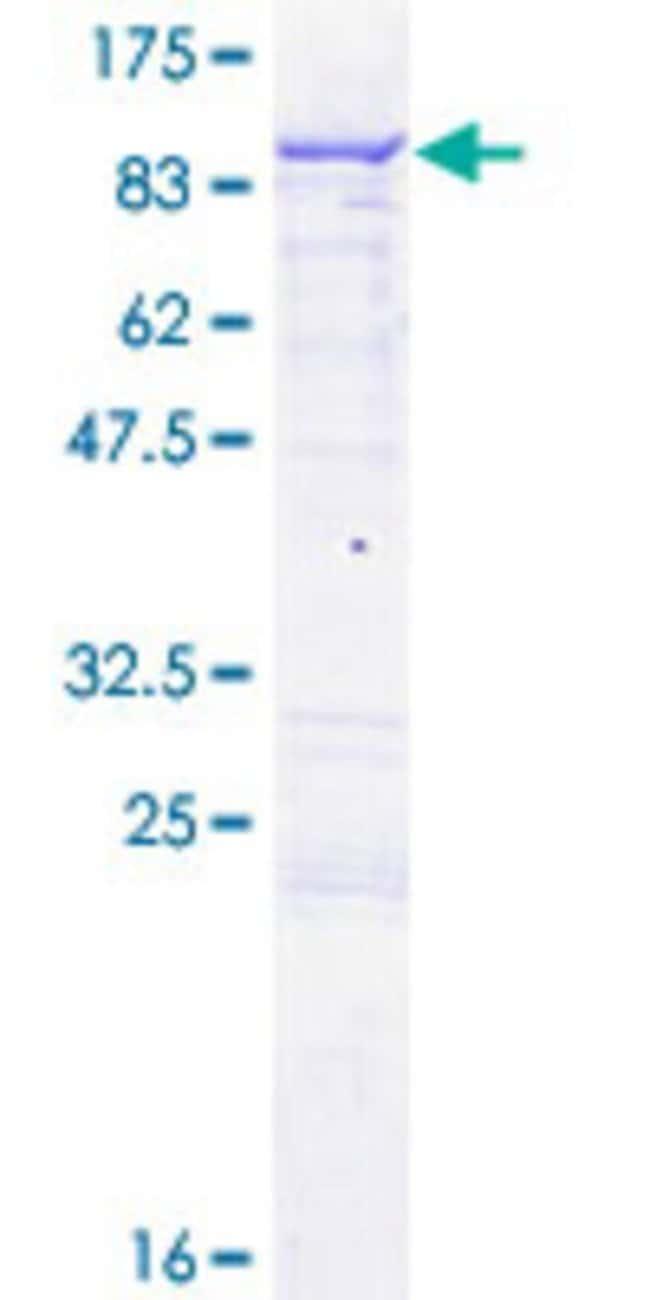 AbnovaHuman ENOX1 Full-length ORF (AAH24178.1, 1 a.a. - 643 a.a.) Recombinant