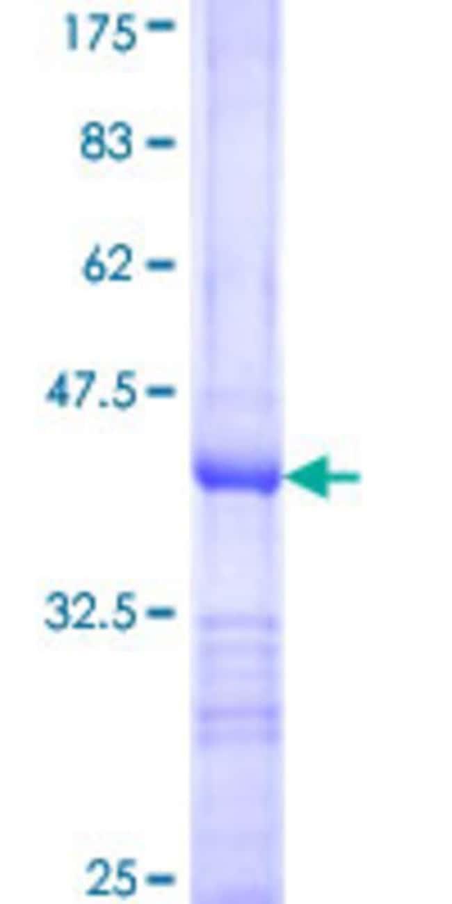 AbnovaHuman DET1 Partial ORF (NP_060466, 452 a.a. - 561 a.a.) Recombinant