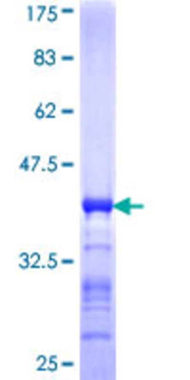 AbnovaHuman TAPBPL Partial ORF (NP_060479, 23 a.a. - 121 a.a.) Recombinant