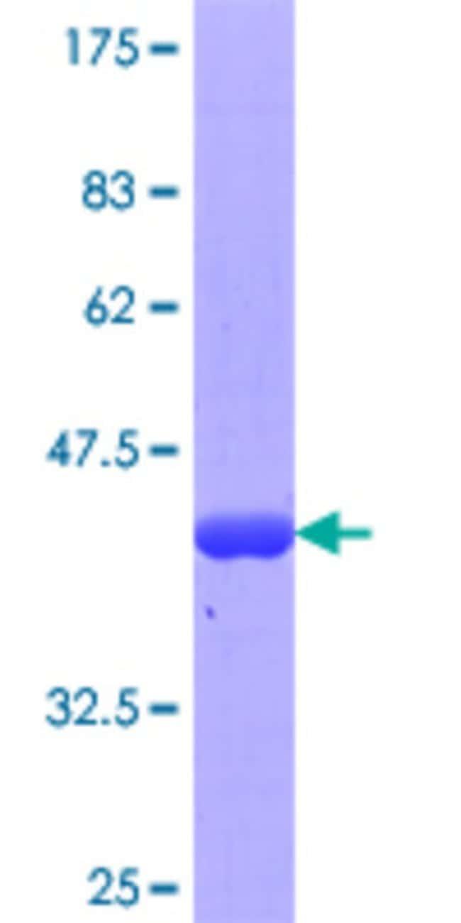 AbnovaHuman ESRRBL1 Partial ORF (NP_060480, 214 a.a. - 312 a.a.) Recombinant