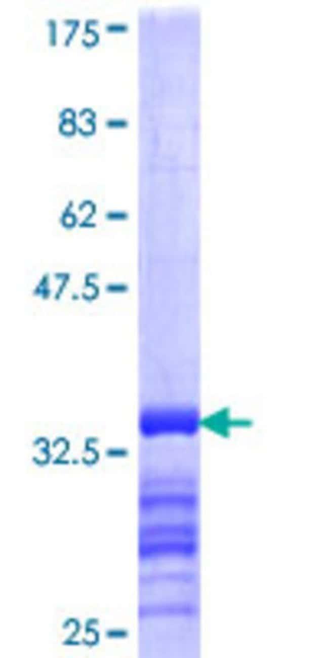 AbnovaHuman SLC38A4 Partial ORF (NP_060488, 245 a.a. - 331 a.a.) Recombinant