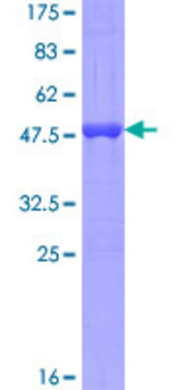 AbnovaHuman MED9 Full-length ORF (NP_060489.1, 1 a.a. - 146 a.a.) Recombinant