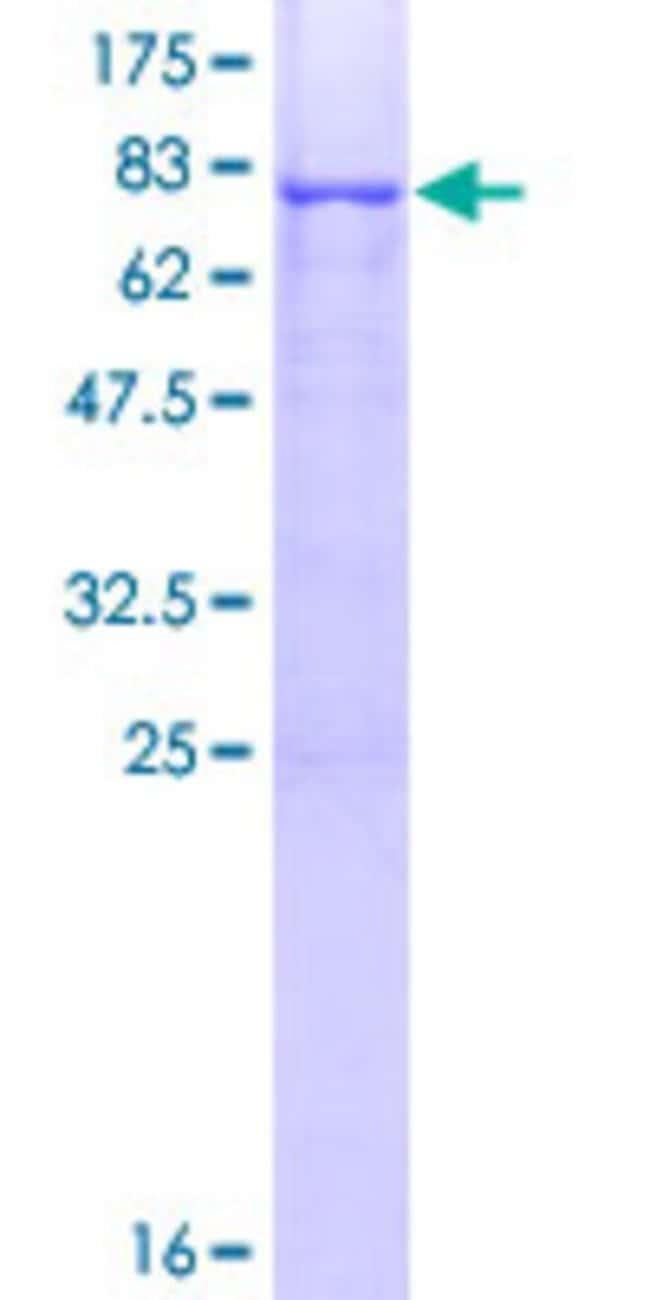 AbnovaHuman CRTAC1 Full-length ORF (AAH34245.1, 1 a.a. - 451 a.a.) Recombinant