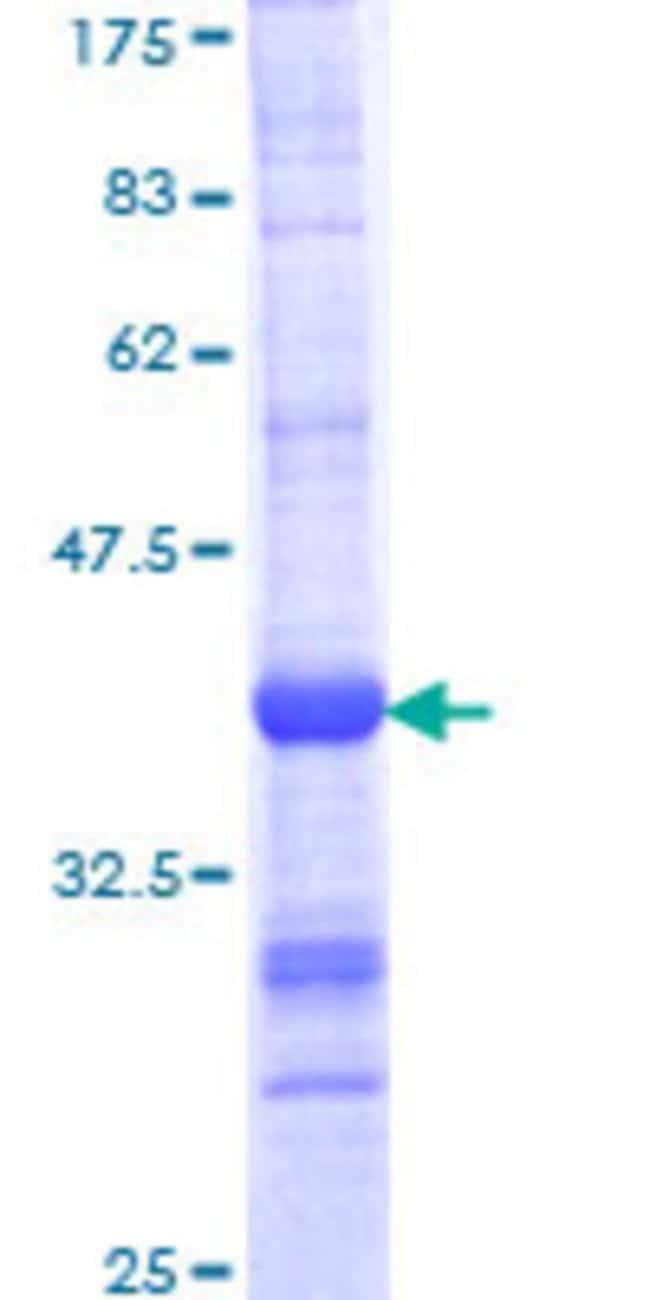 AbnovaHuman ARMC4 Partial ORF (NP_060546, 945 a.a. - 1044 a.a.) Recombinant