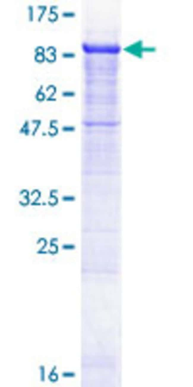 Abnova™Human WDR79 Full-length ORF (AAH02336.1, 1 a.a. - 548 a.a.) Recombinant Protein with GST-tag at N-terminal 10μg Abnova™Human WDR79 Full-length ORF (AAH02336.1, 1 a.a. - 548 a.a.) Recombinant Protein with GST-tag at N-terminal