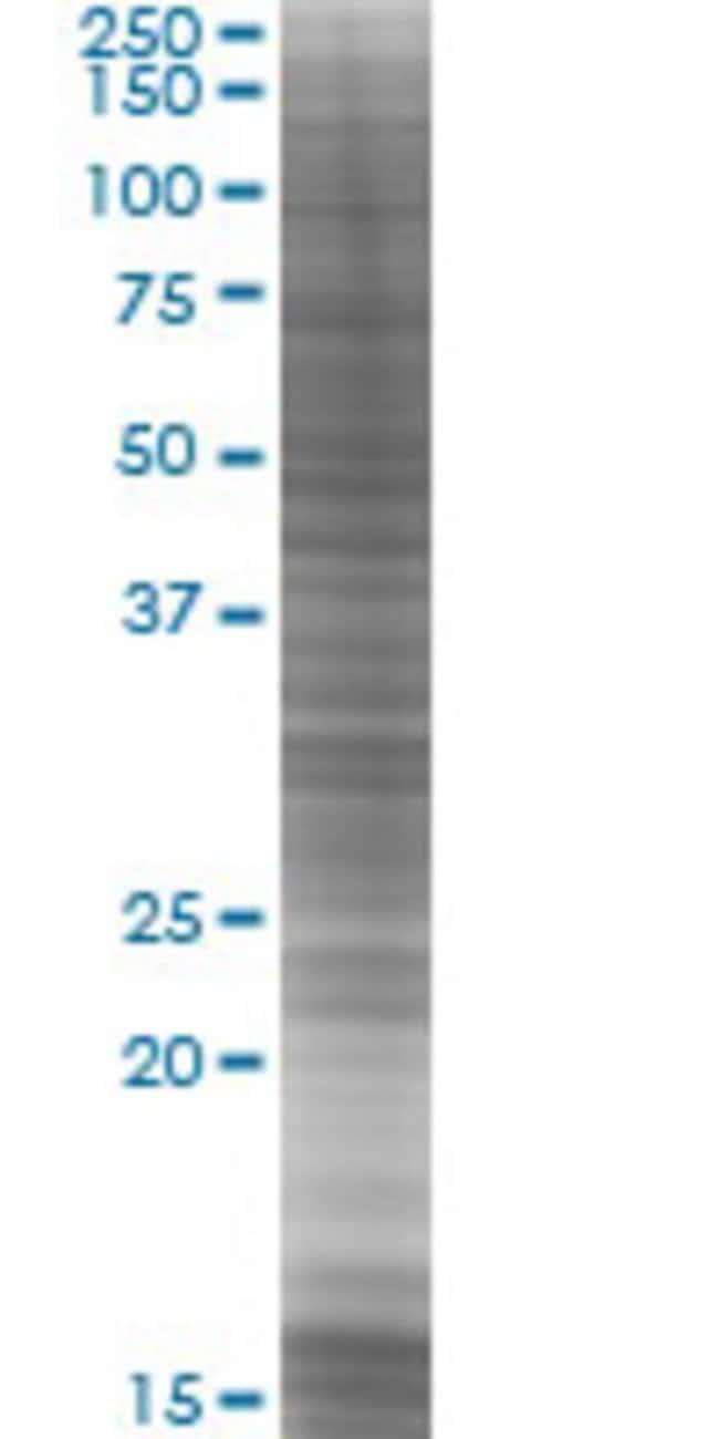 Abnova RBM23 293T Cell Transient Overexpression Lysate (Denatured) (T03)