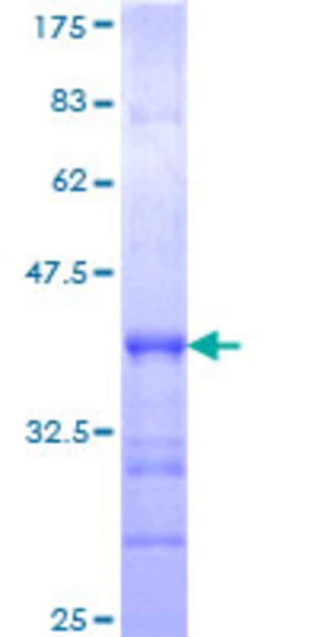 AbnovaHuman RFWD3 Partial ORF (AAH59371, 651 a.a. - 749 a.a.) Recombinant