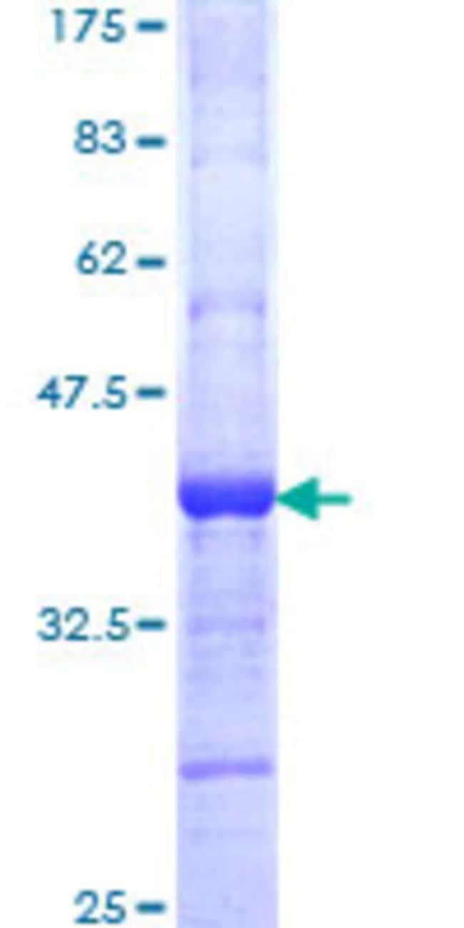 AbnovaHuman RNF184 Partial ORF (NP_060603, 478 a.a. - 575 a.a.) Recombinant