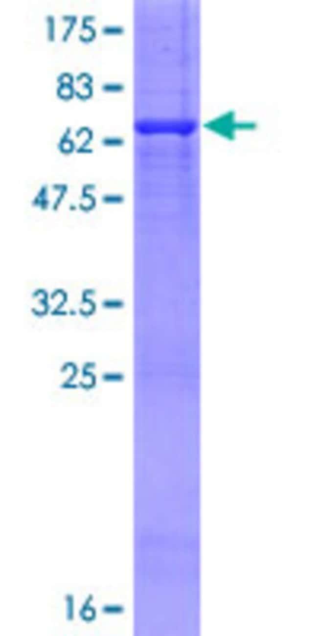 AbnovaHuman PRMT6 Full-length ORF (NP_060607.1, 1 a.a. - 316 a.a.) Recombinant