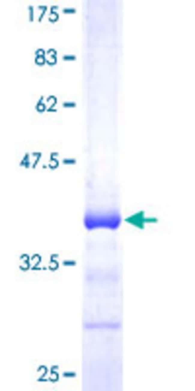 Abnova Human HRMT1L6 Partial ORF (NP_060607, 241 a.a. - 316 a.a.) Recombinant