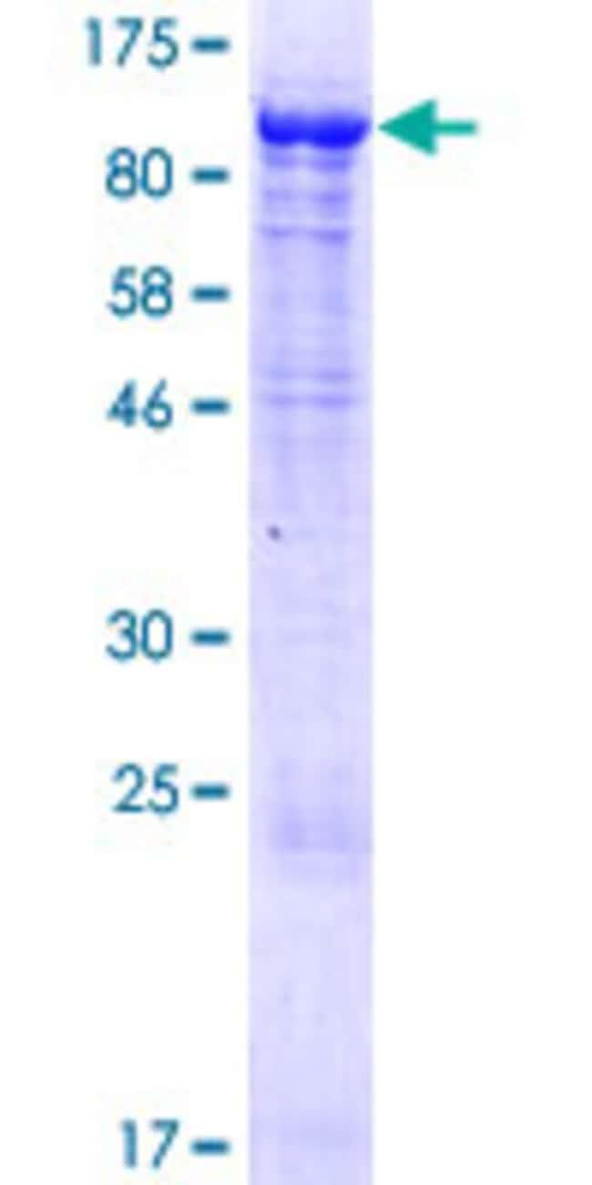 Abnova Human KLHL11 Full-length ORF (NP_060613.1, 1 a.a. - 708 a.a.) Recombinant