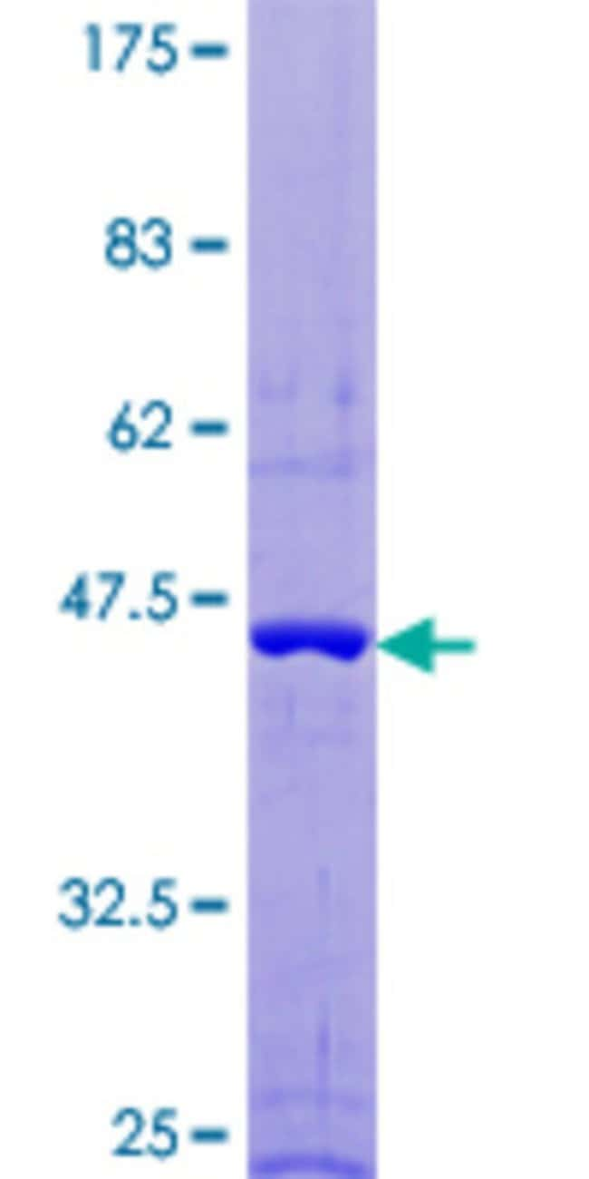 AbnovaHuman FAIM Full-length ORF (NP_060617.1, 1 a.a. - 179 a.a.) Recombinant