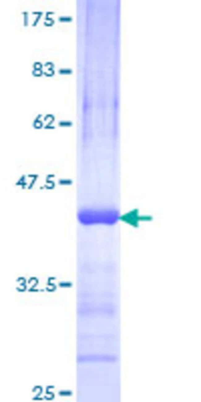 AbnovaHuman FLJ10597 Partial ORF (NP_060620, 468 a.a. - 566 a.a.) Recombinant