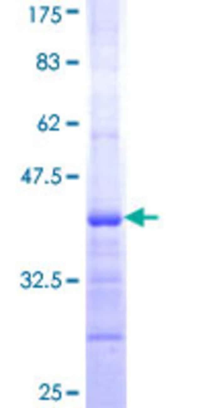 AbnovaHuman NADSYN1 Partial ORF (NP_004981, 609 a.a. - 706 a.a.) Recombinant