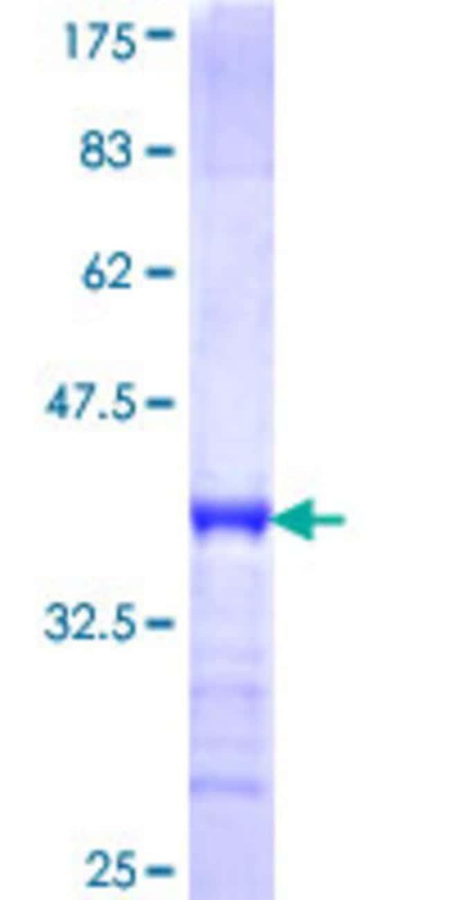 AbnovaHuman RPRD1A Partial ORF (NP_060640, 76 a.a. - 170 a.a.) Recombinant