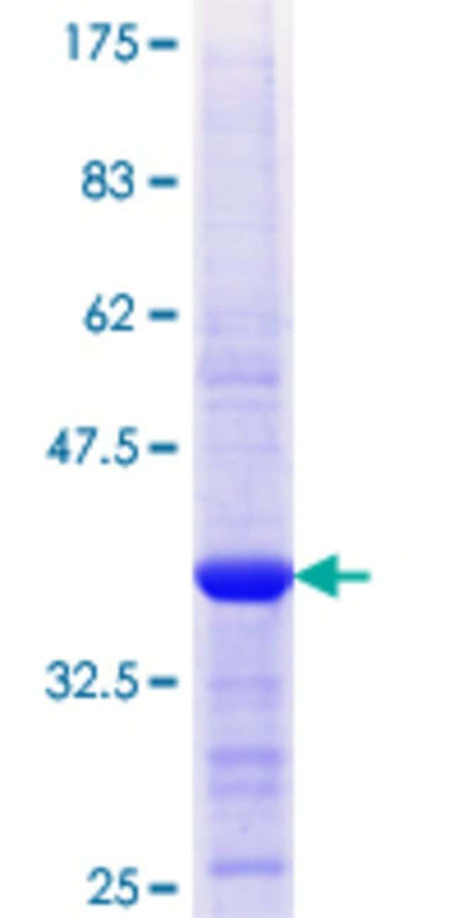 Abnova™Human APPL2 Partial ORF (NP_060641.2, 174 a.a. - 273 a.a.) Recombinant Protein with GST-tag at N-terminal 10μg Abnova™Human APPL2 Partial ORF (NP_060641.2, 174 a.a. - 273 a.a.) Recombinant Protein with GST-tag at N-terminal